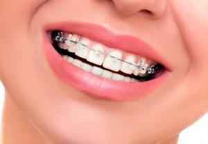 Especialista en ortodoncia - Especialidades - Odontologia